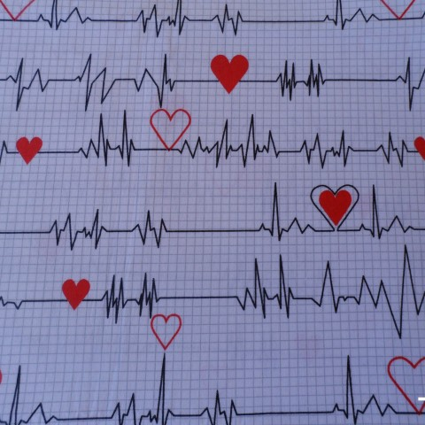 Electrocardio